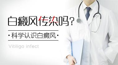 昆明专治白斑的医院:白癜风传染吗
