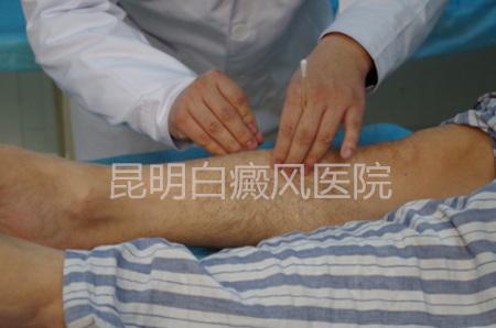 白癜风早期的治疗