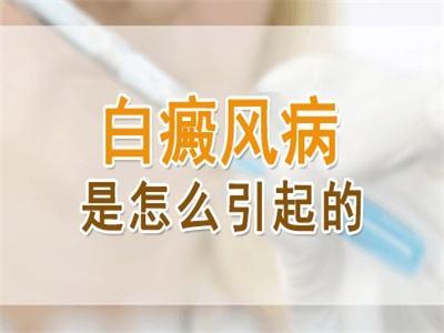 云南省白癜风专科医院:是什么引发颈部白癜风