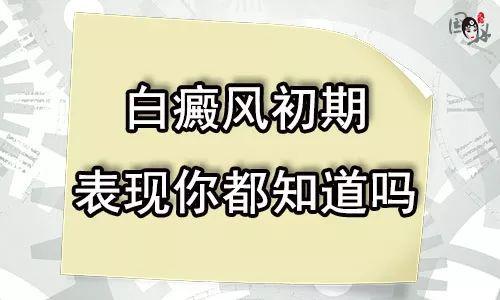 云南白癜风有哪些症状表现