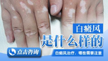 昆明的皮肤科医院:白癜风分为哪些类型
